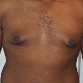 Patient de 24 ans avec gynécomastie
