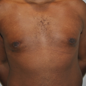 4 semaines après une chirurgie pour gynécomastie