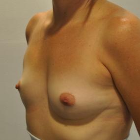 Patiente de 36 ans avant augmentation mammaire