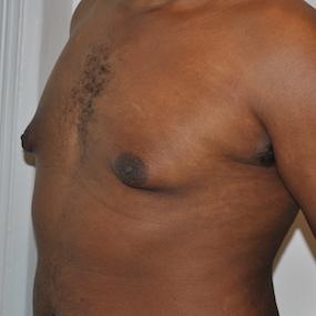 Patient de 24 ans avec gynecomastie