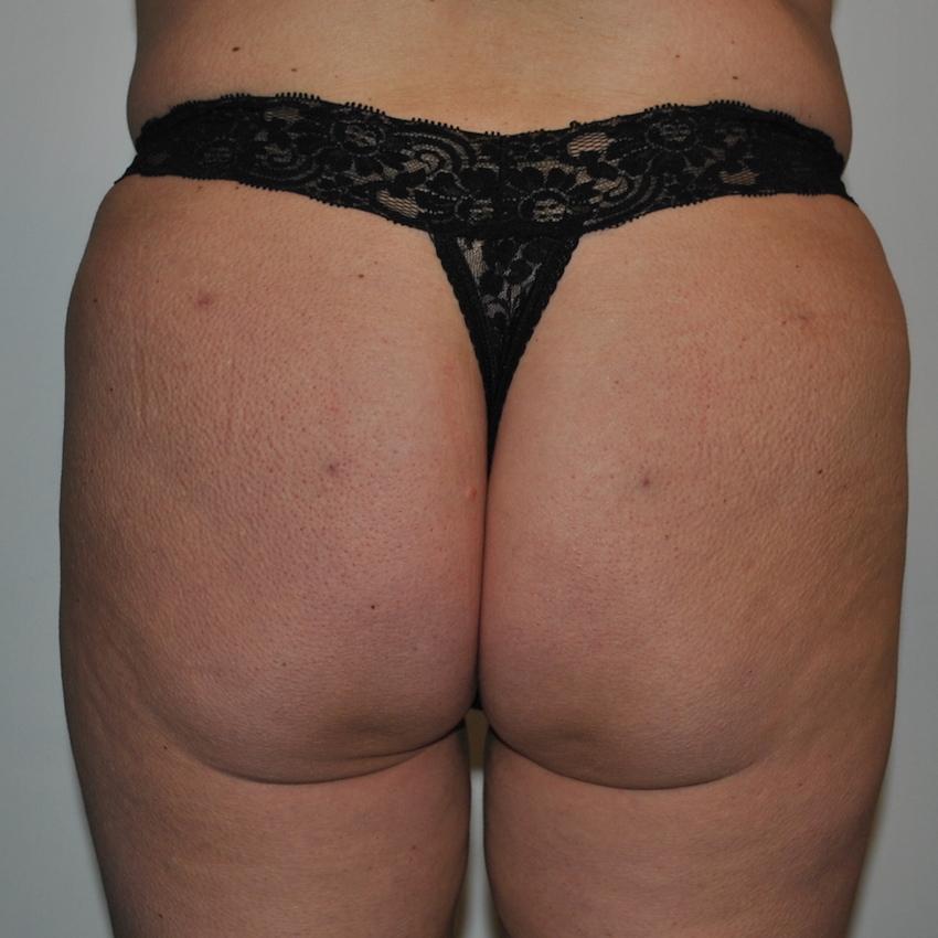 Brazilian lifting of the buttocks