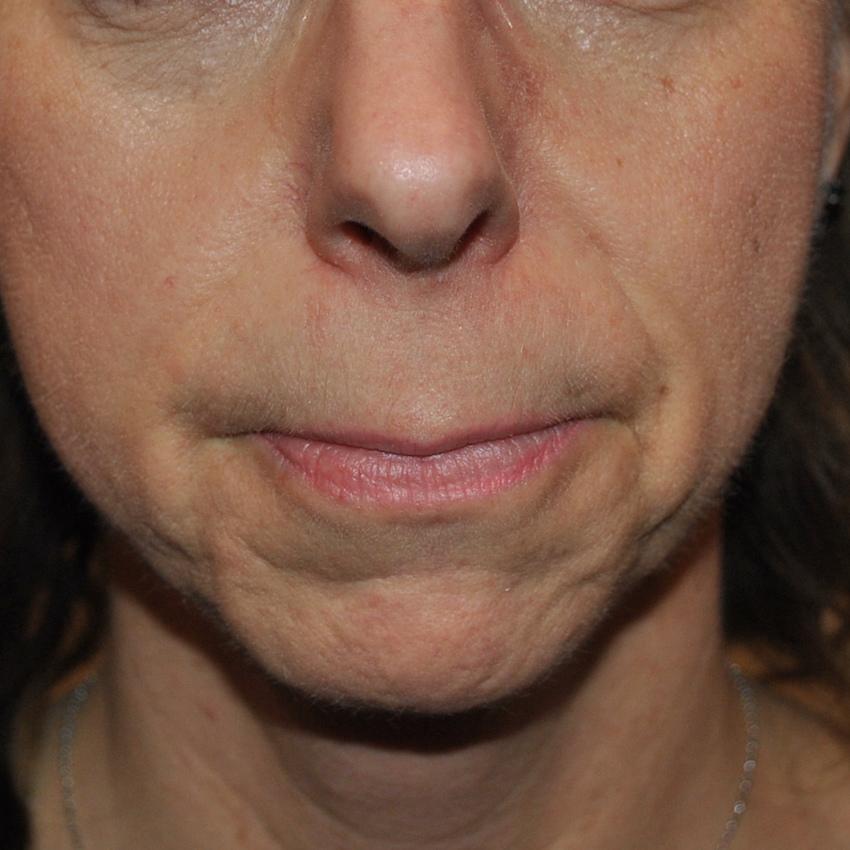 Botox Montreal
